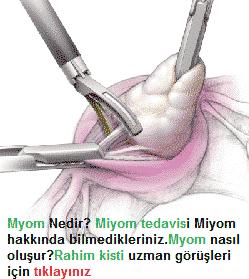 Myom Rahim Kisti